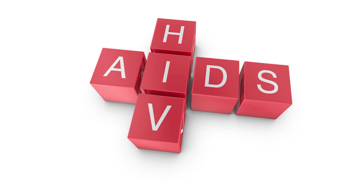 Aids History of